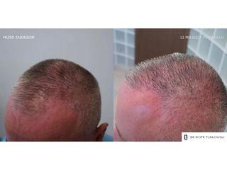 Łysienie androgenowe z zaawansowanymi zakolami. Przeszczep włosów. Przeszczep włosów: przed i po