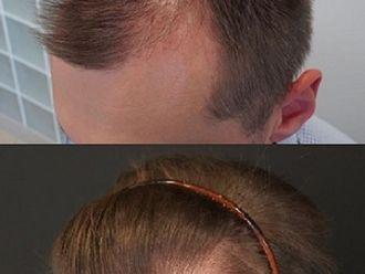 Przeszczep włosów-776480
