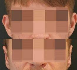 Plastyka uszu - przed i po