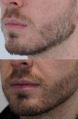 Przeszczep brody - przed i po