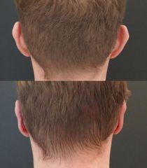Chirurgiczna korekta uszu - przed i po