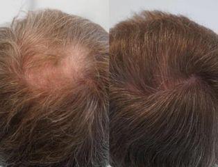 Przeszczep włosów FUE - przed i po