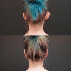 Operacja plastyczna uszu - przed i po