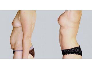 Abdominoplastyka - przed i po