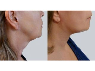 Lifting twarzy - przed i po