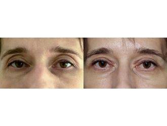 Blefaroplastyka-687374