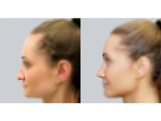 Rhinoplastyka - przed i po