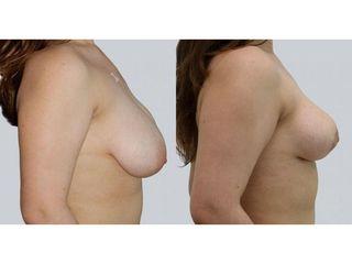 Zmniejszenie i korekta asymetrii piersi - przed i po