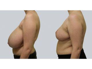 Zmniejszenie piersi - przed i po