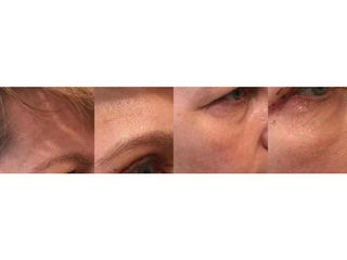 Plastyka powiek - przed i po