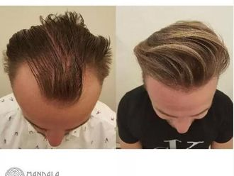 Przeszczep włosów-655201
