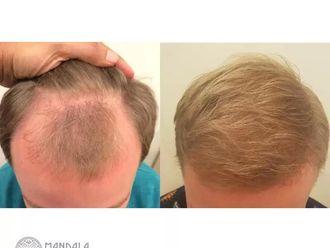 Przeszczep włosów-655203