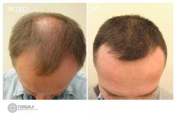 Przeszczep włosów: przed i po