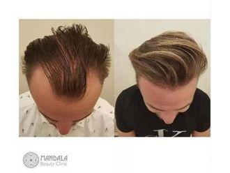 Przeszczep włosów-686771