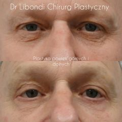 Blefaroplastyka - lek. med. Guido Libondi