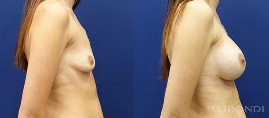 Powiększanie biustu - lek. med. Guido Libondi