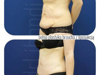 Plastyka brzucha - 794346