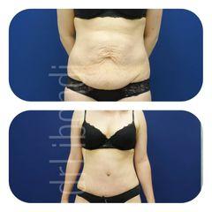 Plastyka brzucha z liposukcją ultradźwiękową