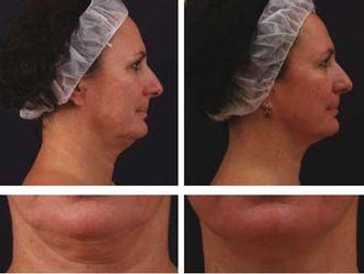 Mezoterapia igłowa - odmładzanie twarzy, szyi, dekoltu, dłoni-656121