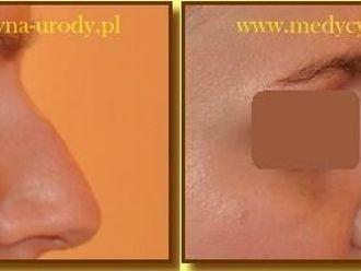 Korekta nosa kwasem hialuronowym-657294