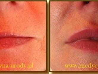 Powiększanie ust (Augmentacja)-657321