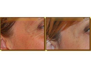Mezoterapia - przed i po