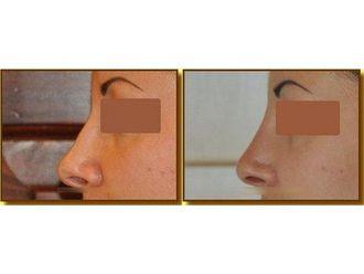 Korekta nosa kwasem hialuronowym-693689