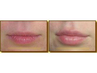 Powiększanie ust kwasem hialuronowym-693691