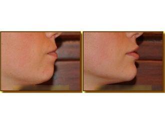 Powiększanie ust kwasem hialuronowym-693718