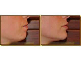 Modelowanie ust - przed i po