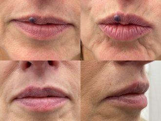 Laserowe zabiegi dermatologii estetycznej-800231