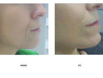 Korekta nosa kwasem hialuronowym-657627