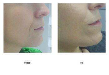 Przed i po Wypłycenie bruzdy nosowo-wargowej kwasem hialuronowym