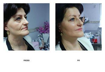 Przed i po Lifting miękki kwasem hialuronowym