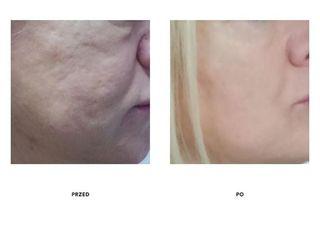 Przed i po: nici liftingujące oraz peeling