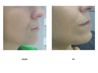 Przed i po: wypłycenie bruzdy nosowo-wargowej kwasem hialuronowym