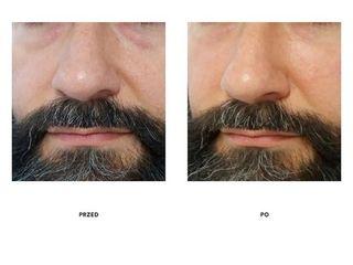 Przed i po: mezoterapia kwasem hialuronowym