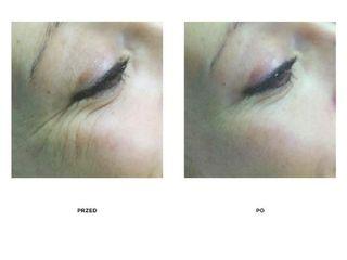 Przed i po: kwas hialuronowy Renensity 2