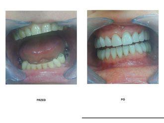 Implanty zębowe-690073