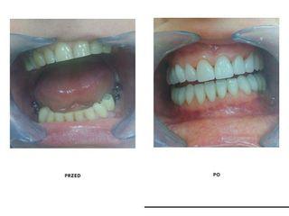 Przed i po: implanty zębowe Bicon