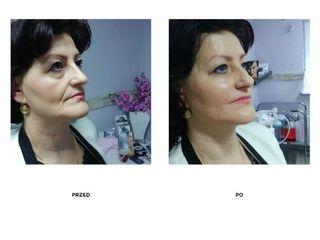 Przed i po: lifting miękki kwasem hialuronowym