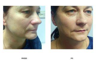 Przed i po: nici liftingujące Barb 4D