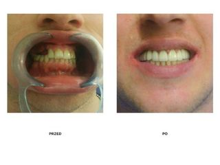 Przed i po: implanty zębowe Bicon + licówki pełnoceramiczne przed