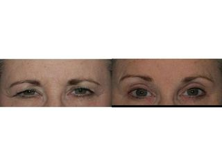 Blefaroplastyka - przed i po