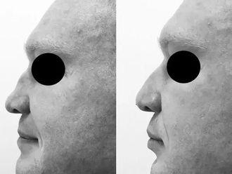 Korekta nosa kwasem hialuronowym-660223