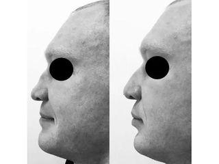 Korekta nosa kwasem hialuronowym- przed i po