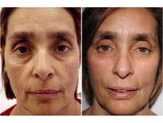 Mezoterapia igłowa-688487