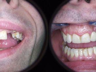 Implanty zębowe - 655986