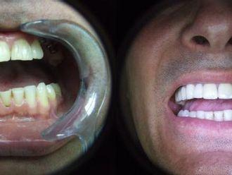 Implanty zębowe - 655987