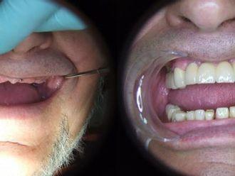 Implanty zębowe - 655988